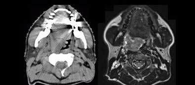 Mer individanpassad strålning ska ge skonsammare cancervård