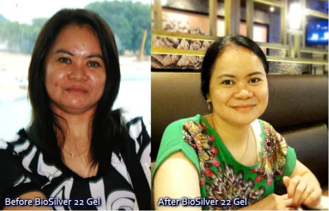 Restore Your Skin Confidence with BioSilver 22 Gel