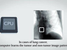 New Heavy-ion Radiotherapy Technology Tracks Tumors