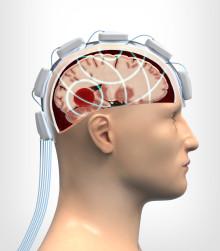 Mikrovågshjälm ger snabb och säker bedömning av skallskador