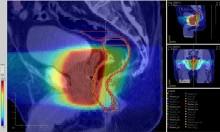 Prostatacancerbehandling kan ges i högre dos per tillfälle och under kortare period