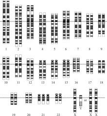 Färre hoptrasslade proteiner ger färre för tidigt åldrade celler