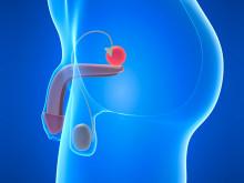 Prostatacancervården i behov av utveckling