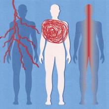 Västerbottningarna svårt drabbade av lungsjukdomen sarkoidos