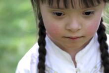 Flere velger bort barn med Downs syndrom