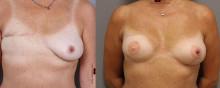Kvinnors hälsa efter bröstcancer fokus för nationell studie