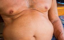 Analys av befolkningsstudier visar global ökning av diabetes och övervikt de senaste 40 åren