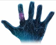 Fler får smärtlindring med ny tablett vid reumatoid artrit