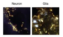 Alzheimerplack inte lika farligt för alla celler i hjärnan
