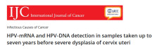 International Journal of Cancer publicerar sju års longitudinella effektdata för Aptima HPV Assay