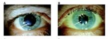 Anlag för ögonsjukdom spårade till västerbottnisk släkt på 1700-talet