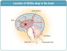 Sällsynt hjärntumör – nytt läkemedel i högkostnadsskyddet