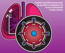 Lungcancerpatienter med särskild genmutation lever längre, innan sjukdomen förvärras, med tablettbehandling