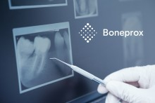 Boneprox vokser!