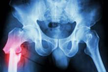Hög risk för fallolyckor kan vara ett tidigt tecken på Parkinsons sjukdom