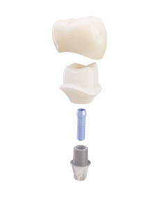 DENTSPLY Implants komplettiert Abutment-Angebot