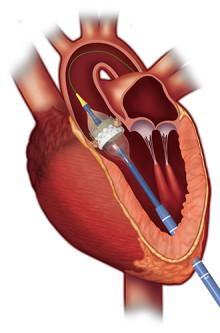 Många patienter känner oro inför att få en kateterburen hjärtklaff