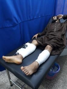 Gaza: Läkare Utan Gränser trappar upp insats för skadade