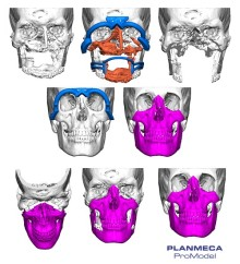 Planmeca ProModel™ part of first facial tissue transplant procedure in Nordics