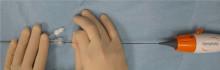 Högt blodtryck går att operera