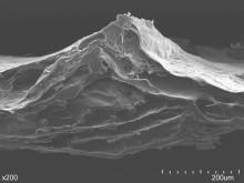 Biologische Gerüste für die regenerative Medizin