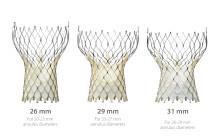 Gode nyheter for pasienter med forsnevring i aortaklaffen*