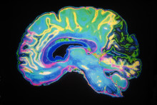 Bengt Winblads pris, 50 000 kronor, till Alzheimerforskning