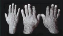 Påtagligt bättre resultat vid behandling av akromegali