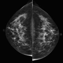 Invandrarkvinnor uteblir från mammografi  - dör oftare i bröstcancer