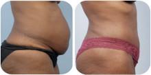 Body Tite - ny unik metod som alternativ till fettsugning