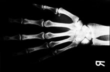 """Knochenkleber"" – Innovative Medizin startet als BMWi-Projekt"