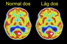 Stråldosen kan halveras vid PET-undersökning av patienter med misstänkt demenssjukdom