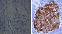 Forskningsstudie visar lovande resultat för ny behandling av typ 1-diabetes