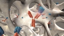 Nya data talar för att denosumab minskar risken för återfall i bröstcancer