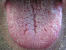 Ny undersøgelse afslører medicin, der kan give tandproblemer