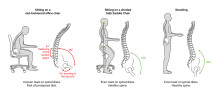 ​Back pain is a global epidemic