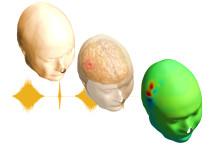 Snabbare diagnos ska förhindra dödsfall och hjärnskador