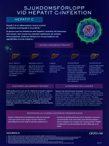 Hepatit C sjukdomsförlopp infograf