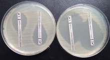 New antibiotic resistance genes found