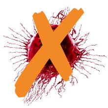 """Wie vernichtet man den Darmkrebs? Der internationale Workshop """"Innovations in Oncology"""" will einen Fahrplan gegen diesen Krebs entwickeln."""