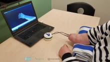 Den första fingerfärdiga och kännande handprotesen har implanterats
