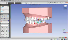 Planmeca introduces new 3D tools for orthodontists and dental labs