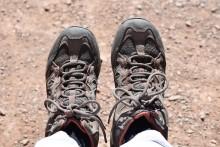 Större risk för amputationer vid diabetesrelaterade fotsår