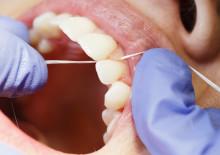 Tannlegeforeningen anbefaler fortsatt bruk av tanntråd