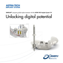 Unlocking digital potential - SIMPLANT with ASTRA TECH Implant System EV
