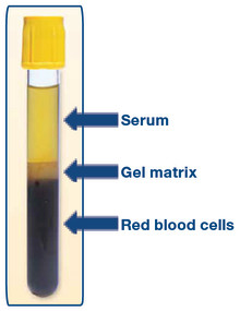 Recovery of serum directly from serum separator tubes (SST) for viral testing and archiving.