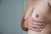 Gynecomastia Is Prevailing In Men Above 44 Years Old