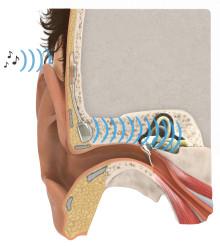 Nytt implantat ersätter skadat mellanöra