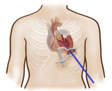 Pressmeddelande: Akademiska inför skonsam metod för hjärtklaffsbyte