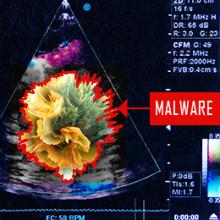 Cybersäkerhetsforskare hackar ultraljudsmaskin
